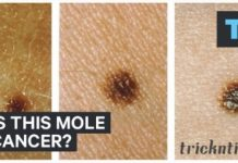 Does a mole cause cancer?